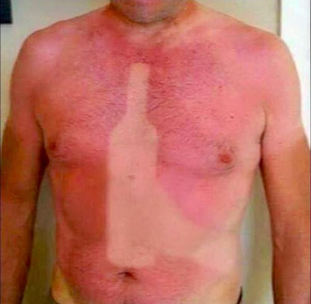 Guy fell asleep in the sun with a wine bottle on his chest